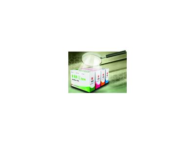 单纯疱疹II型IgG抗体检测试剂盒