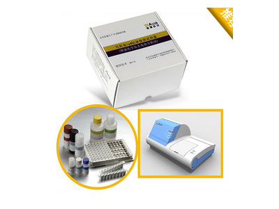 单纯疱疹病毒1型IgG抗体检测试剂盒