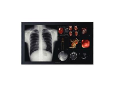 65寸8百万像素会诊医疗显示器