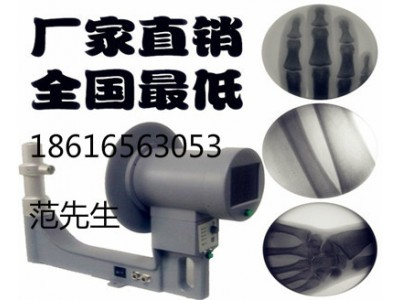 医用骨科便携式手提式低剂量x射线机透视仪