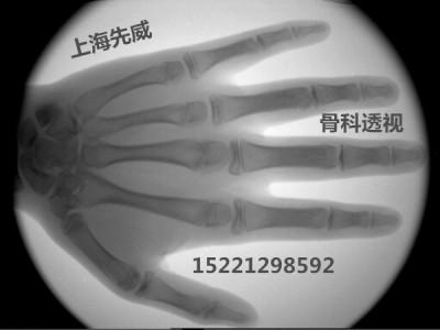 XBJI-1便携式手提式X射线透视仪医用X光机