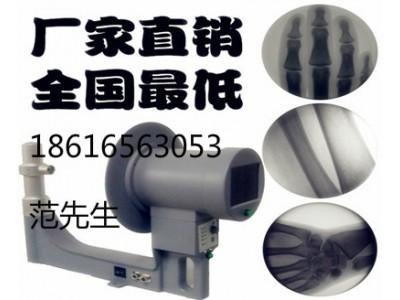 医用小型便携式X光机手提式骨科X光机透视仪厂家批发价格。