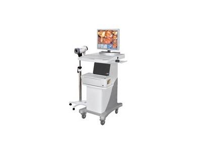 EK-6000C数码电子阴道镜
