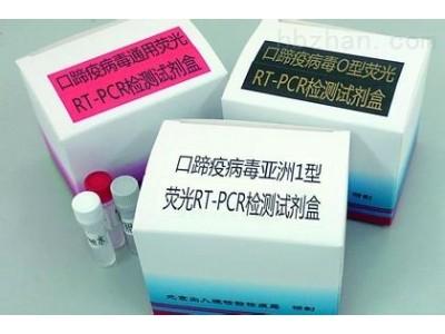 诺沃克病毒核酸检测试剂盒(PCR-荧光探针法)