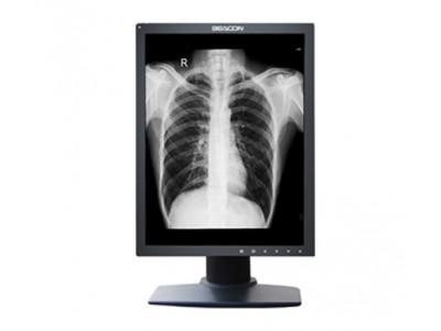 2M灰阶医用显示器