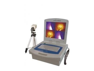 红外乳腺检查仪EK-9000B(便携式分析打印)