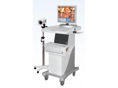 数码电子阴道镜EK-6000(标准型)