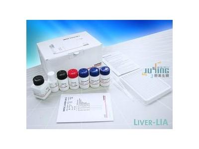 自身免疫性肝病抗体谱检测试剂盒(免疫印迹法)