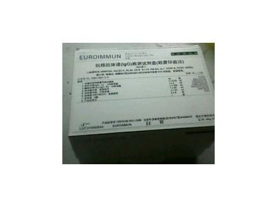 抗核抗体谱检测试剂盒(免疫印迹法)