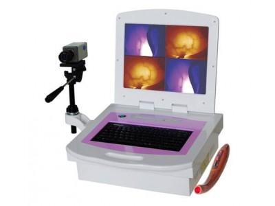 乳腺病治疗仪/红外乳腺病检查仪/红外乳腺病诊断仪