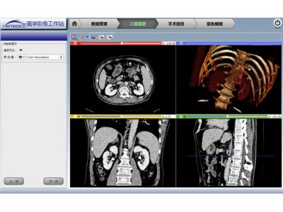 肿瘤热消融手术三维影像规划工作站