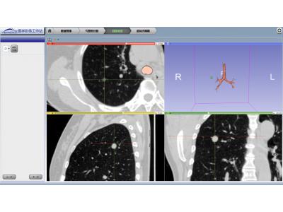 肺部组织热消融手术三维影像规划工作站(含虚拟内窥镜功能)