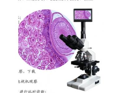 一滴血检测分析仪