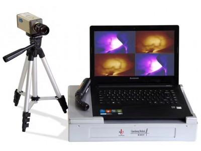 便携式红外乳腺诊断仪,红外乳腺检查仪,笔记本式红外乳腺诊断仪