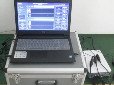 便携笔记本式TCD彩色超声经颅多普勒血流分析仪