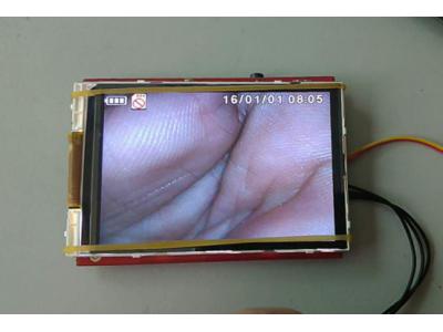 厂家直供可视喉镜高清3寸摄录记录存储液晶模块