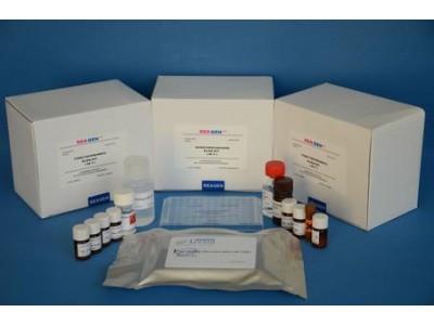 大鼠白细胞介素1(IL-1)酶联免疫分析试剂盒实验原理