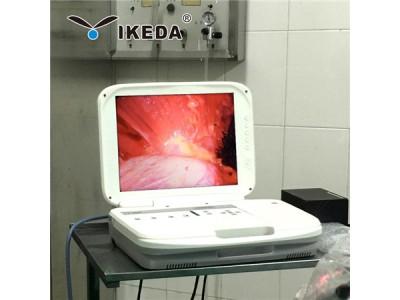 供应耳鼻喉科使用的内窥镜摄像机,高清晰内窥镜摄像机