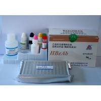 大鼠糖缺失性转铁蛋白(CDT)酶联免疫分析试剂盒