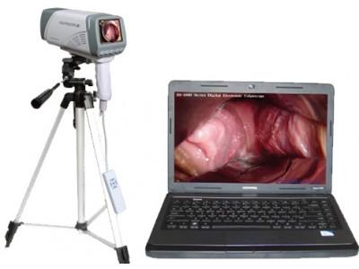 厂家供应笔记本式数码电子阴道镜