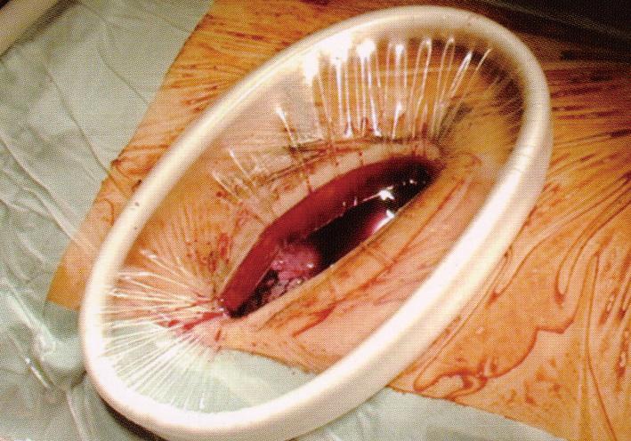 切口扩张器