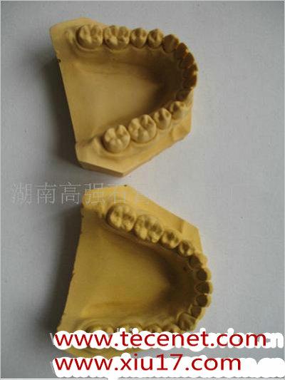 齿科硬石膏