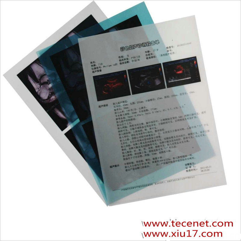 医用激光胶片(检验型)