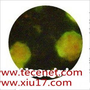 单纯疱疹病毒Ⅱ型检测试剂盒