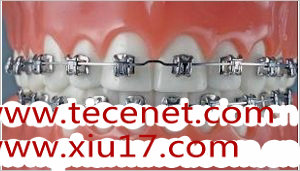 牙科正畸用托槽、带环、颊侧管