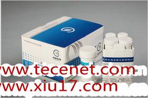 促卵泡生成激素(FSH)定量测定试剂盒(化学发光法)