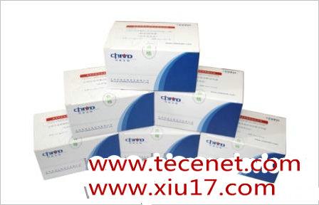 丙型肝炎病毒抗体诊断试剂盒(化学发光法)