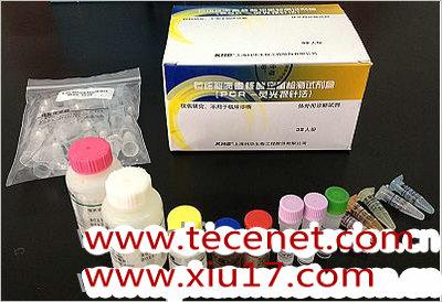甲型通用型和甲型H1N1流感病毒(2009)RNA检测试剂盒(荧光PCR法)