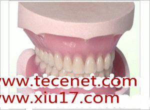 定制式义齿-固定义齿