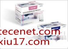 乙型肝炎病毒核心抗体诊断试剂盒(化学发光法)