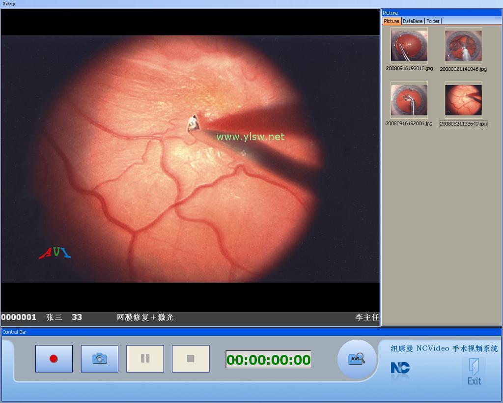 供应高清手术视频系统