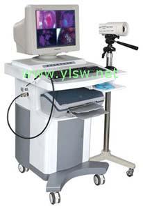 供应数码电子阴道镜
