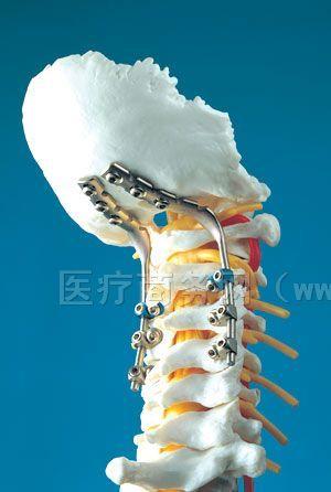供应CerviFix-AO/ASIF 新型颈椎后路杆固定系统