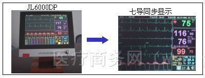 供应JL6000DP便携式床边监护仪