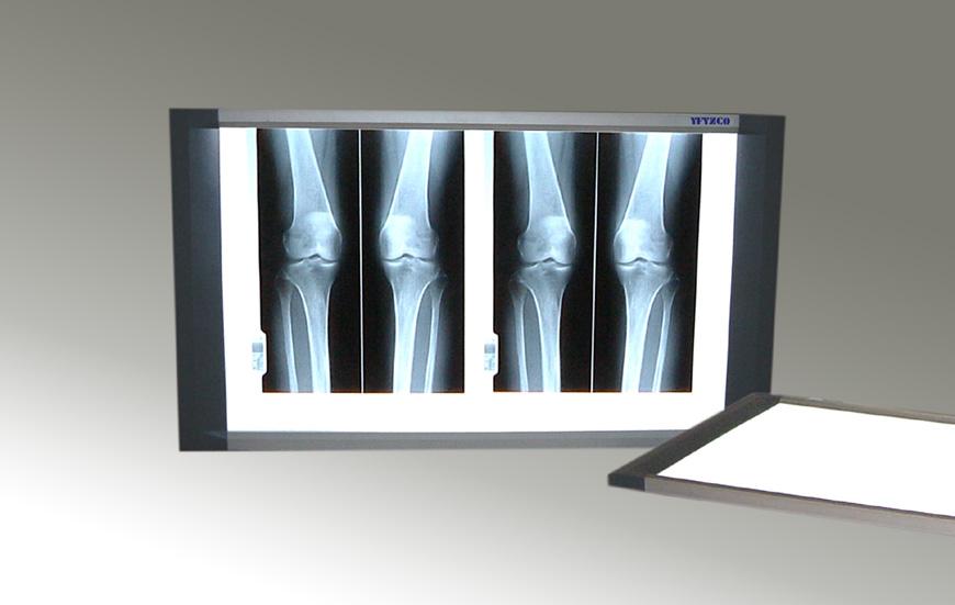 供应X光液晶观片灯