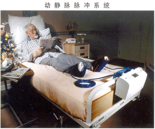 供应动静脉脉冲系统