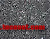 人胚胎祖细胞株W10