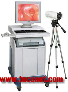 生产厂家数码电子阴道镜