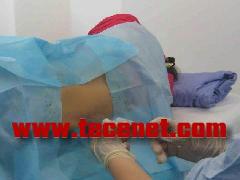 臭氧治疗椎间盘穿刺针,臭氧耗材