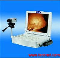 便携式红外乳腺诊断仪