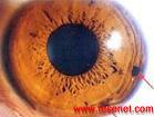 虹膜虹膜仪虹膜学虹膜检测仪检测系统