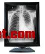 XD-6000F 数字胃肠医学影像工作站
