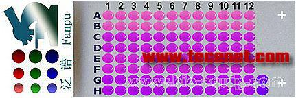 BRC961 - 乳腺癌组织芯片