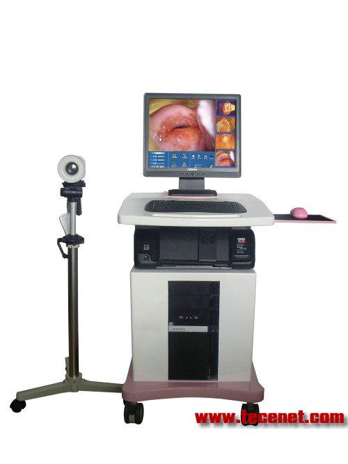 数码电子阴道镜生产厂家-阴道镜价格