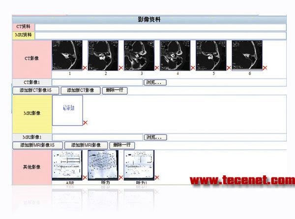 临床患者数据库软件