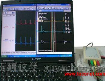 心电图解析系统,动物心电图解析系统